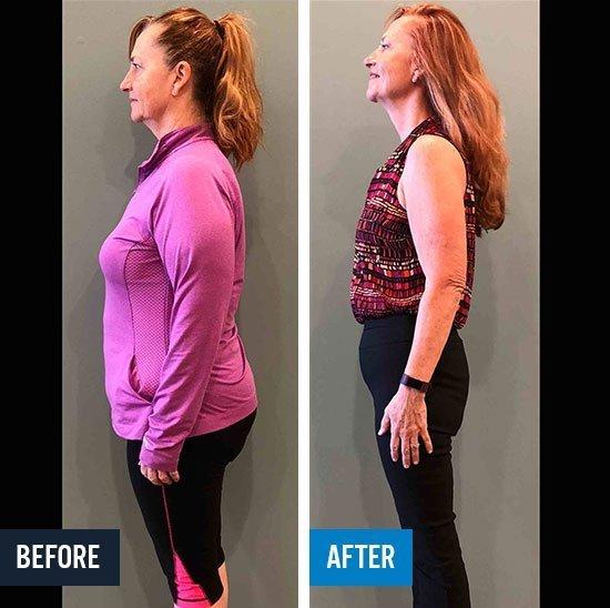 SOTA Weight Loss - State of the Art Weightloss - Fast Weight